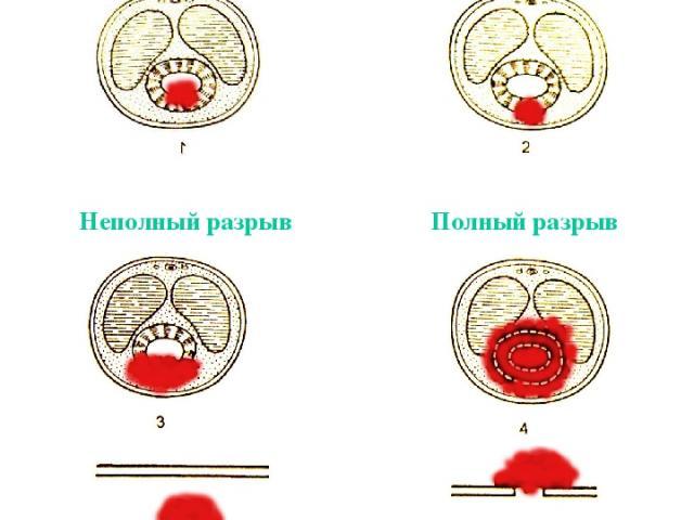 Травма уретры Непроникающие (пристеночные) разрывы Неполный разрыв Полный разрыв
