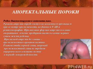 АНОРЕКТАЛЬНЫЕ ПОРОКИ Редко диагностируются антенатально. Уровень атрезии определ