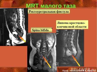 MRT малого таза Spina bifida Ректоуретральная фистула Проф. Новожилов В.А. Иркут
