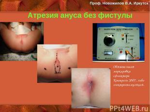 Атрезия ануса без фистулы Обязательная маркировка сфинктера Контроль ЭМГ, либо э