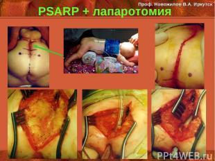PSARP + лапаротомия Проф. Новожилов В.А. Иркутск