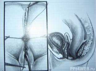 Операция А. Pena