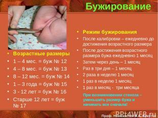 Бужирование Возрастные размеры 1 – 4 мес. = буж № 12 4 – 8 мес. = буж № 13 8 – 1