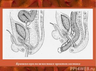 Брюшно-промежностная проктопластика