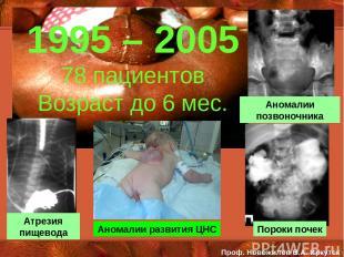 Атрезия пищевода Аномалии позвоночника Пороки почек 1995 – 2005 78 пациентов Воз
