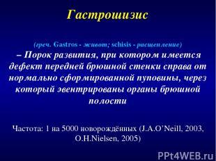 Гастрошизис Частота: 1 на 5000 новорождённых (J.A.O'Neill, 2003, O.H.Nielsen, 20