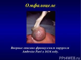 Впервые описано французским хирургом Ambroise Paré в 1634 году. Омфалоцеле