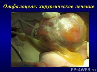 Омфалоцеле: хирургическое лечение