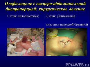 1 этап: силопластика; Омфалоцеле с висцеро-абдоминальной диспропорцией: хирургич