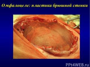 Омфалоцеле: пластика брюшной стенки