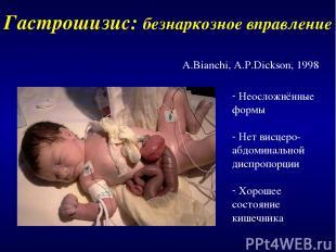 Гастрошизис: безнаркозное вправление A.Bianchi, A.P.Dickson, 1998 Неосложнённые