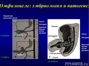 Омфалоцеле: эмбриология и патогенез 70 дней Аорта Желудок Верхняя брыже- ечная а
