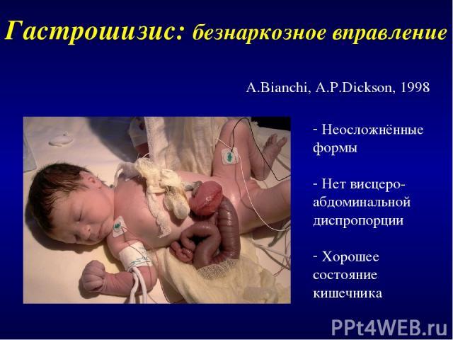 Гастрошизис: безнаркозное вправление A.Bianchi, A.P.Dickson, 1998 Неосложнённые формы Нет висцеро-абдоминальной диспропорции Хорошее состояние кишечника