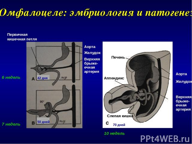 Омфалоцеле: эмбриология и патогенез 70 дней Аорта Желудок Верхняя брыже- ечная артерия Первичная кишечная петля Аорта Желудок Верхняя брыже- ечная артерия 6 недель 7 недель 10 недель Печень Аппендикс Слепая кишка 42 дня 50 дней