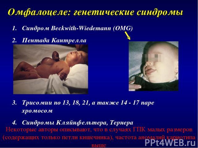 Омфалоцеле: генетические синдромы Синдром Beckwith-Wiedemann (OMG) Пентада Кантрелла Трисомии по 13, 18, 21, а также 14 - 17 паре хромосом Синдромы Кляйнфельтера, Тернера Некоторые авторы описывают, что в случаях ГПК малых размеров (содержащих тольк…