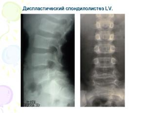 Диспластический спондилолистез LV.