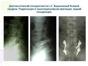 Диспластический спондилолистез LV. Выраженный болевой синдром. Редрессация и тра