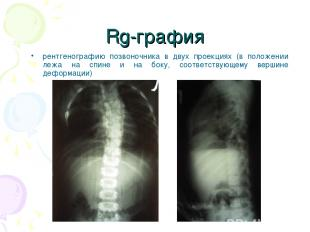 Rg-графия рентгенографию позвоночника в двух проекциях (в положении лежа на спин