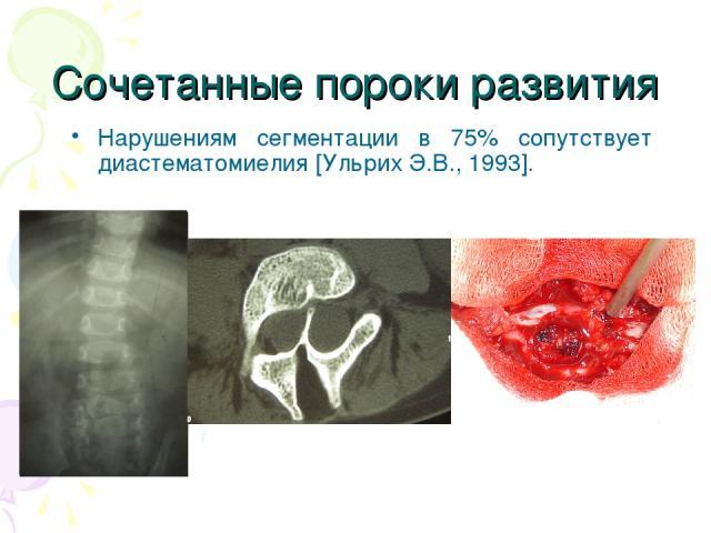 Сочетанные пороки развития Нарушениям сегментации в 75% сопутствует диастематомиелия [Ульрих Э.В., 1993].