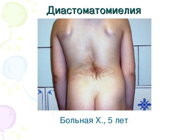 Больная Х., 5 лет Диастоматомиелия