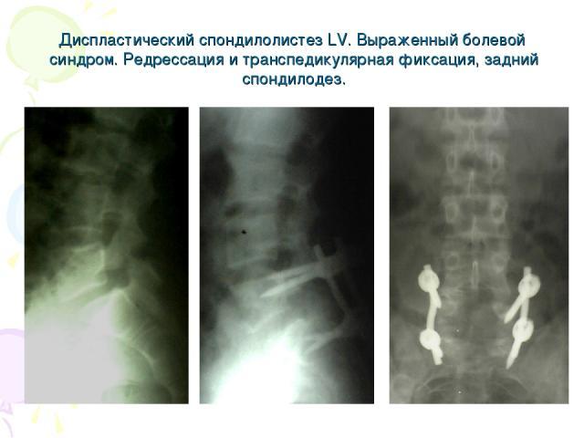 Диспластический спондилолистез LV. Выраженный болевой синдром. Редрессация и транспедикулярная фиксация, задний спондилодез.