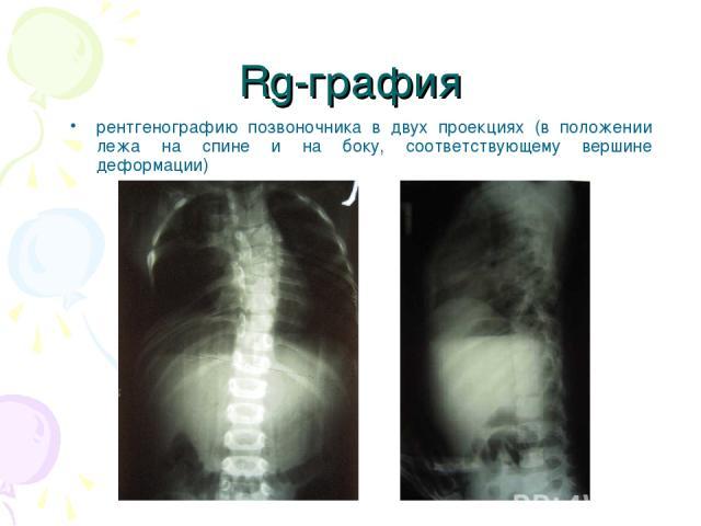Rg-графия рентгенографию позвоночника в двух проекциях (в положении лежа на спине и на боку, соответствующему вершине деформации)