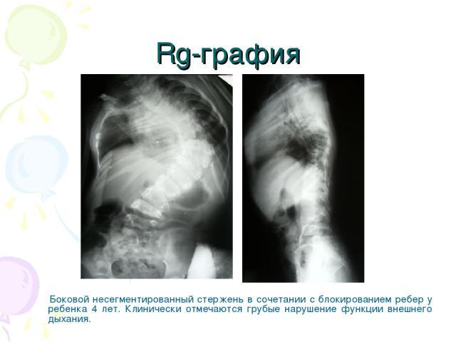 Rg-графия Боковой несегментированный стержень в сочетании с блокированием ребер у ребенка 4 лет. Клинически отмечаются грубые нарушение функции внешнего дыхания.