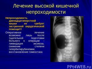 Лечение высокой кишечной непроходимости Непроходимость двенадцатиперстной кишки