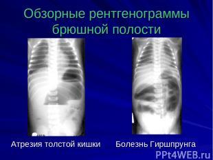 Обзорные рентгенограммы брюшной полости Атрезия толстой кишки Болезнь Гиршпрунга
