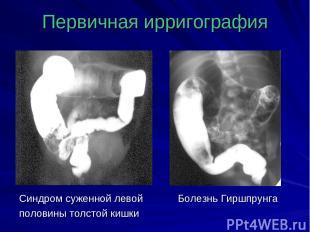 Первичная ирригография Синдром суженной левой Болезнь Гиршпрунга половины толсто