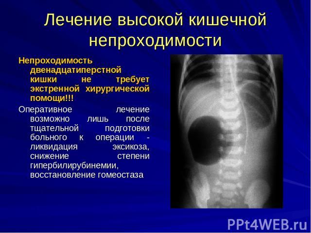 Лечение высокой кишечной непроходимости Непроходимость двенадцатиперстной кишки не требует экстренной хирургической помощи!!! Оперативное лечение возможно лишь после тщательной подготовки больного к операции - ликвидация эксикоза, снижение степени г…