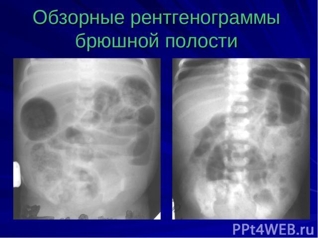 Обзорные рентгенограммы брюшной полости
