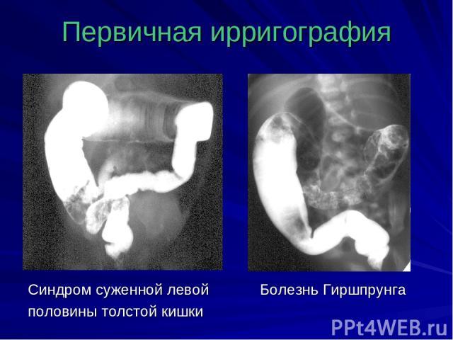 Первичная ирригография Синдром суженной левой Болезнь Гиршпрунга половины толстой кишки