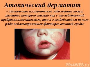 Атопический дерматит – хроническое аллергическое заболевание кожи, развитие кото