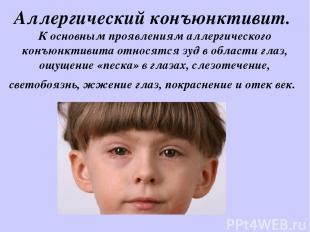 Аллергический конъюнктивит. К основным проявлениям аллергического конъюнктивита