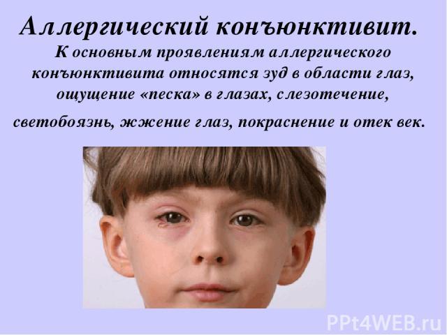 Аллергический конъюнктивит. К основным проявлениям аллергического конъюнктивита относятся зуд в области глаз, ощущение «песка» в глазах, слезотечение, светобоязнь, жжение глаз, покраснение и отек век.