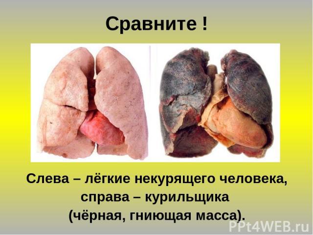 Сравните ! Слева – лёгкие некурящего человека, справа – курильщика (чёрная, гниющая масса).