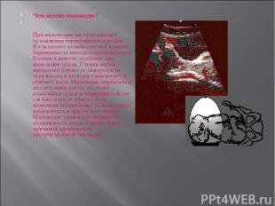 Чем опасно маловодие? При маловодии часто возникают осложнения беременности и ро