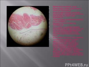 Проявления пузырного заноса Кровотечение, обычно возникающее в I триместре берем