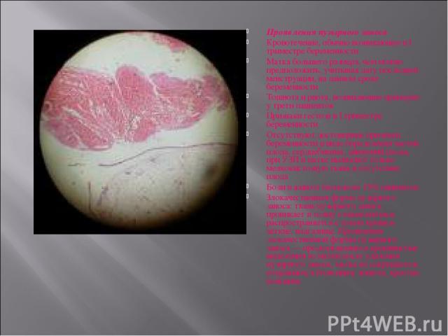 Проявления пузырного заноса Кровотечение, обычно возникающее в I триместре беременности Матка большего размера, чем можно предположить, учитывая дату последней менструации, на данном сроке беременности Тошнота и рвота, возникающие примерно у трети п…