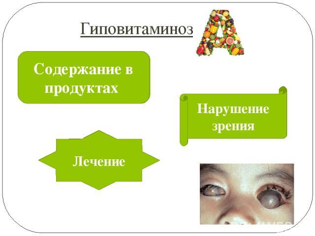 Продукты животного происхождения, зелёные и жёлтые овощи, бобовые, травы Кушать мясные продукты и морковь Лечение Гиповитаминоз Содержание в продуктах Проявления Нарушение зрения