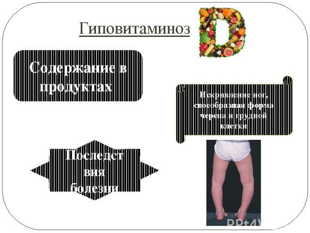 Проявления Сливочное масло, яйца, молоко, рыбий жир Дефицит витамина ведёт к вымыванию из костей кальция → искривление и укорочение позвоночника Последствия болезни Гиповитаминоз Содержание в продуктах Искривление ног, своеобразная форма черепа и гр…