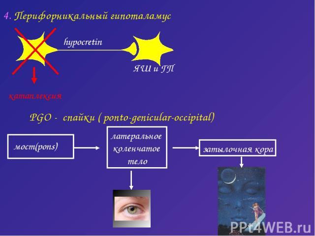 PGO - спайки ( ponto-genicular-occipital) латеральное коленчатое тело затылочная кора 4. Перифорникальный гипоталамус катаплексия