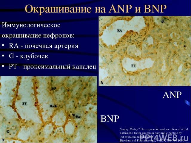 """Окрашивание на ANP и BNP Иммунологическое окрашивание нефронов: RA - почечная артерия G - клубочек РТ - проксимальный каналец ANP BNP Sanjay Mistry """"The expression and secretion of atrial natriuretic factor and brain natriuretic peptide by rat proxi…"""