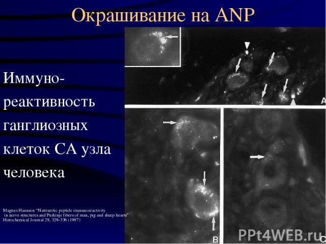 "Окрашивание на ANP Иммуно- реактивность ганглиозных клеток СА узла человека Magnus Hannson ""Natriuretic peptide immunoreactivity in nerve structures and Purkinje fibers of man, pig and sheep hearts"" Histochemical Journal 29, 329-336 (1997)"