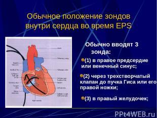 Обычное положение зондов внутри сердца во время EPS Обычно вводят 3 зонда: (1) в