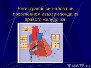 Регистрация сигналов при постепенном изъятии зонда из правого желудочка: