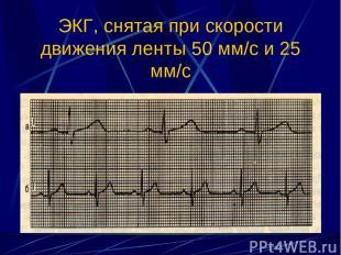ЭКГ, снятая при скорости движения ленты 50 мм/с и 25 мм/с