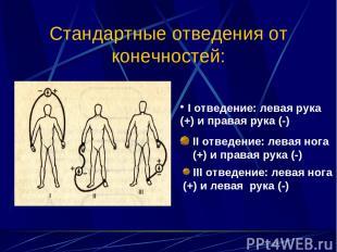 Стандартные отведения от конечностей: II отведение: левая нога (+) и правая рука