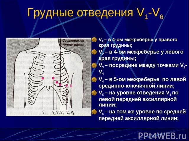 Грудные отведения V1-V6 V1 – в 4-ом межреберье у правого края грудины; V2 – в 4-ом межреберье у левого края грудины; V3 – посредине между точками V2- V4 V4 – в 5-ом межреберье по левой срединно-ключичной линии; V5 – на уровне отведения V4 по левой п…